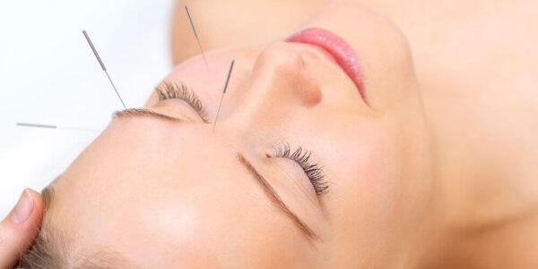 Châm cứu chữa đau dây thần kinh số V là liệu pháp giúp giảm đau hiệu quả.