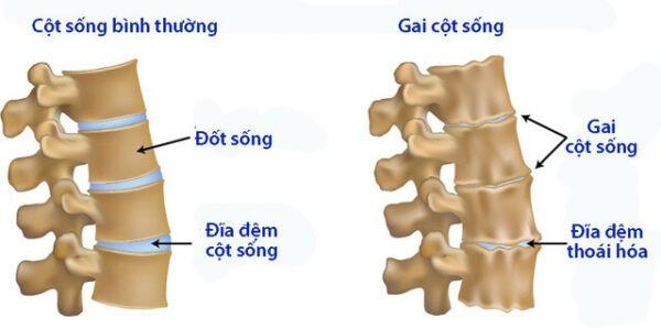 Hầu như bệnh gai cột sống có thể ảnh hưởng lên bất cứ phần nào của cột sống.