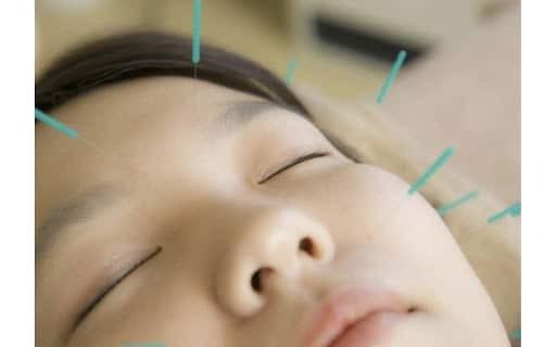 Châm cứu chữa lệch mặt là phương pháp không dùng thuốc cho thấy có hiệu quả giúp cải thiện tình trạng lệch mặt