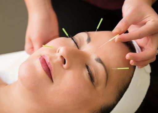 Châm cứu là phương pháp không dùng thuốc có hiệu quả trong việc làm giảm các triệu chứng của viêm mũi dị ứng