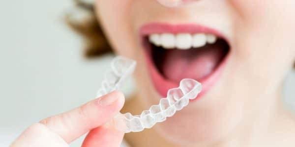 Ưu điểm lớn nhất của niềng răng trong suốt là tính thẩm mỹ cao