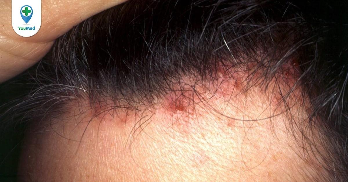 Mụn trên đầu: Nguyên nhân, cách điều trị và ngăn ngừa