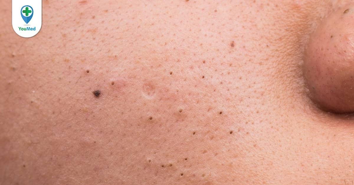Bạn đã biết 9 cách loại bỏ mụn đầu đen này chưa?
