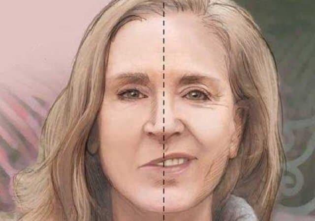 Lệch mặt khiến khuôn mặt trở nên mất cân đối, gây ảnh hưởng lớn đến giao tiếp