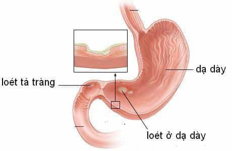 Viêm dạ dày nếu không điều trị kịp thời có thể dẫn tới loét dạ dày