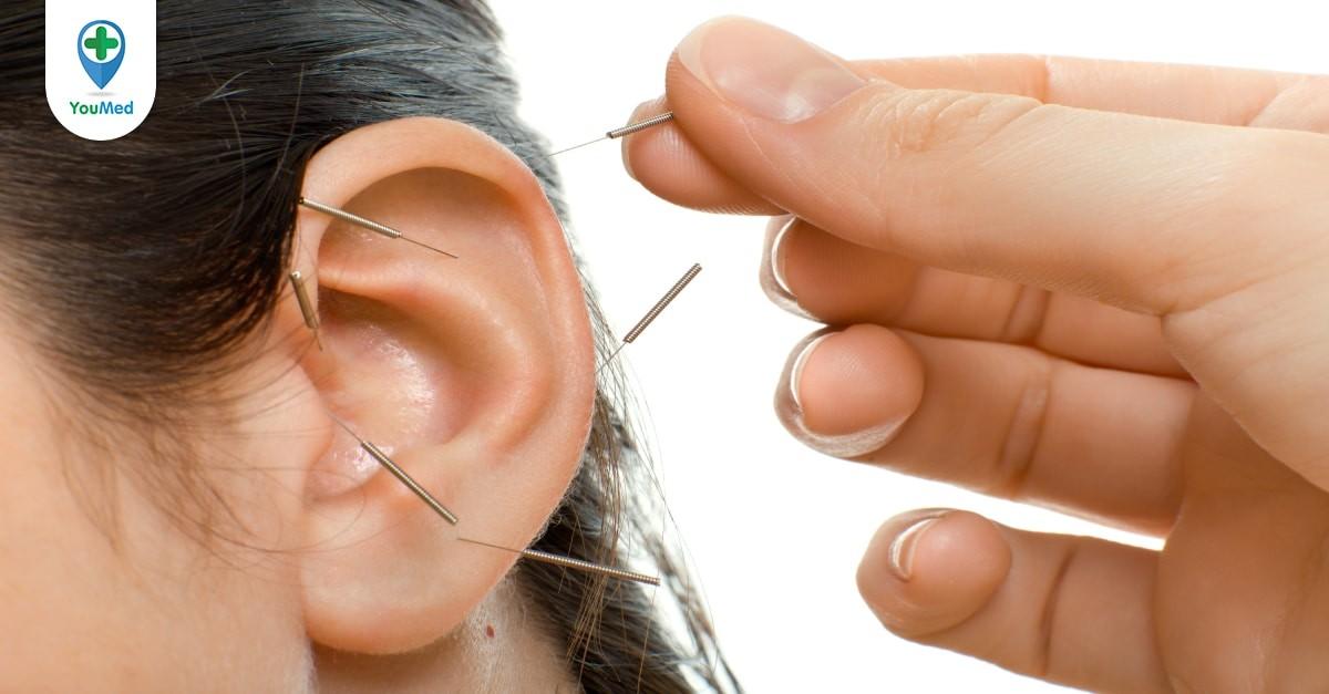 Châm cứu chữa ù tai