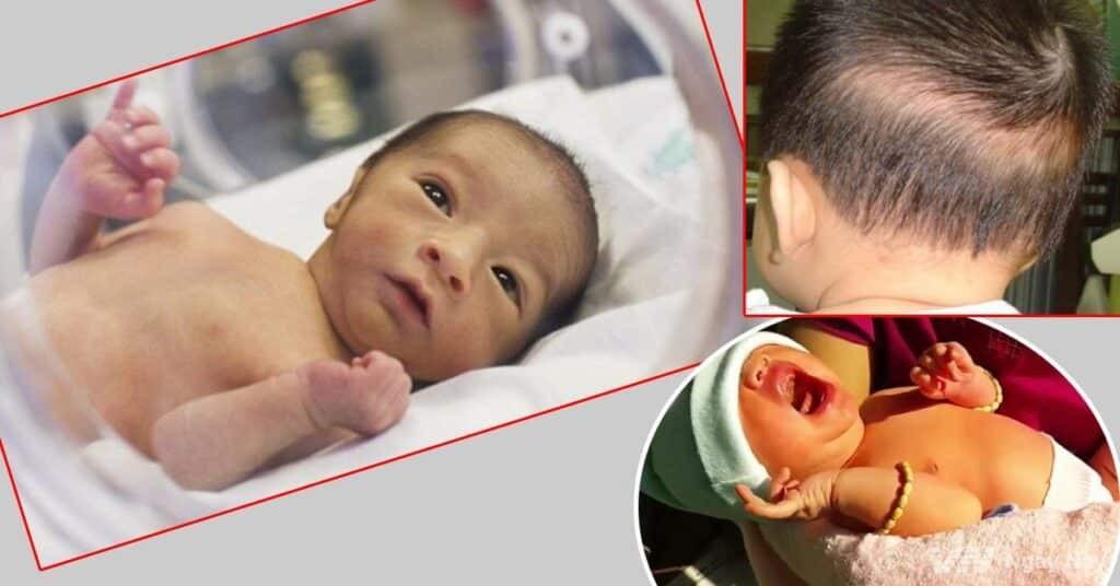 Hạ canxi máu ở trẻ em