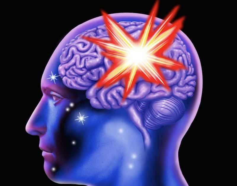 Biến chứng xuất huyết não