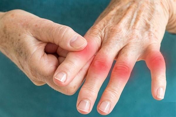 Triệu chứng phong thấp ở tay.