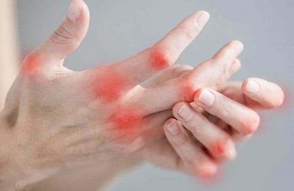 Triệu chứng đau khớp ngón tay.