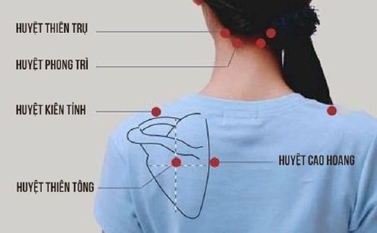 Một số huyệt tại chỗ thường dùn trong châm cứu chữa đau vai gáy