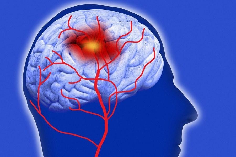 Xuất huyết não do tăng huyết áp ở người cao tuổi
