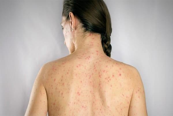 Tìm hiểu thông tin bệnh thuỷ đậu ở người lớn