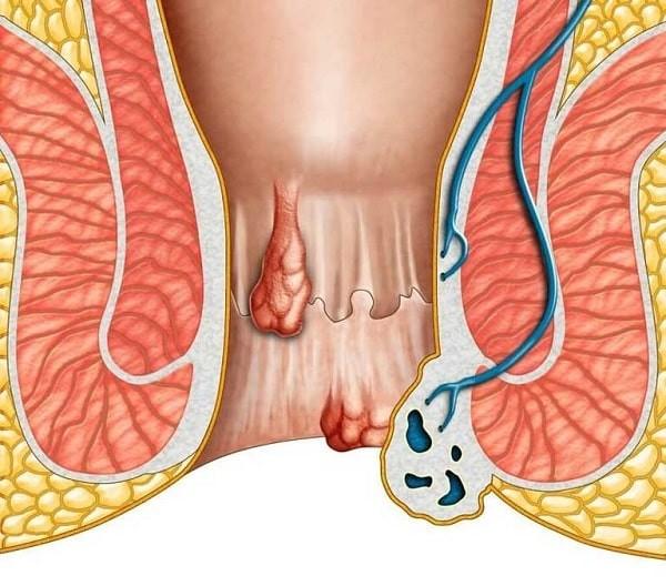 Trĩ có thể gây đi ngoài đau rát hậu môn