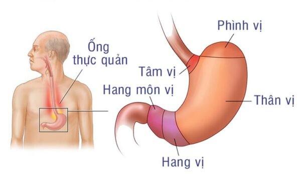 Viêm hang vị dạ dày là viêm lớp niêm mạc của dạ dày và có thể ảnh hưởng đến lớp thanh mạc