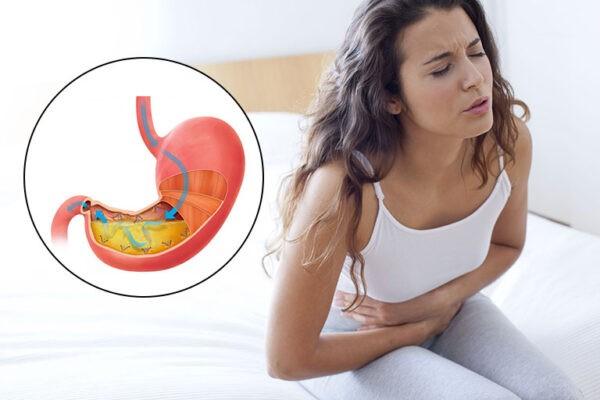 Viêm xung huyết hang vị dạ dày là tình trạng vùng hang vị bị viêm