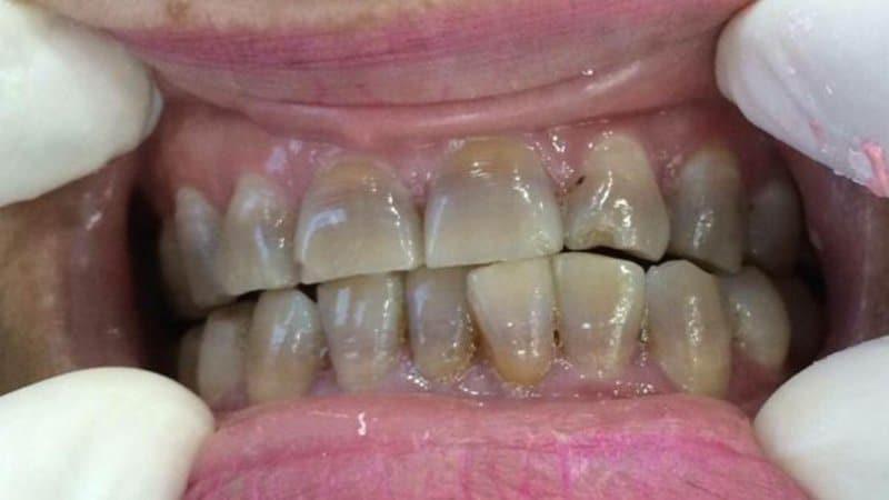 Ố răng do tetracyclin