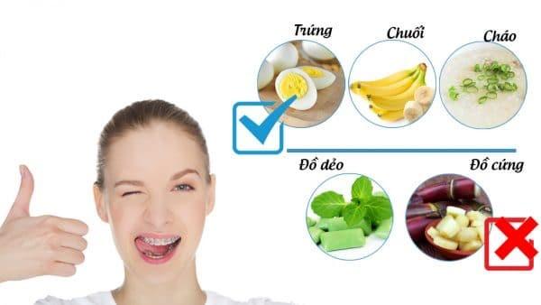 Chú ý chế độ ăn uống khi niềng răng