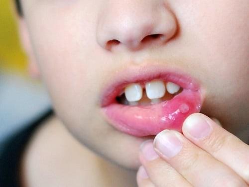 chữa nhiệt miệng cho trẻ