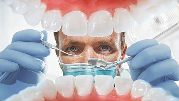 Cách tẩy răng ố vàng