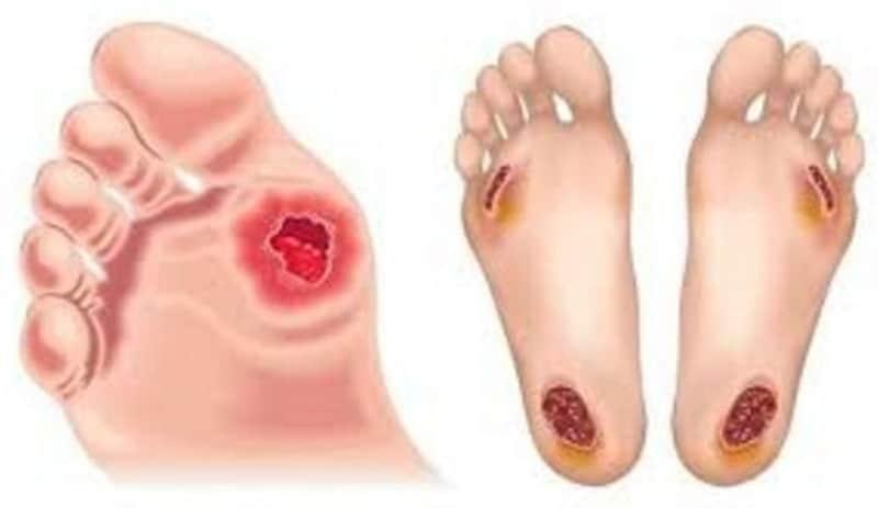 Nhiễm trùng bàn chân là một biến chứng nặng của đái tháo đường