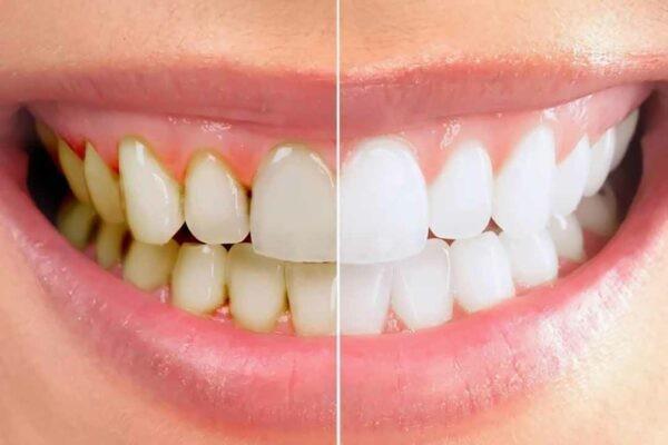 Mảng bám trên răng sẽ là nguyên nhân thúc đẩy viêm nha chu
