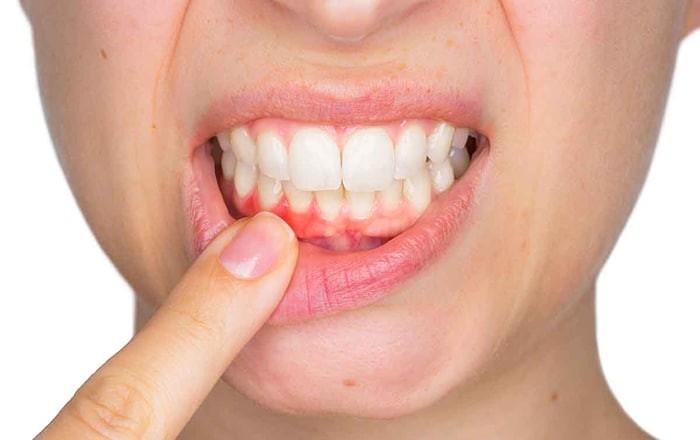 Khi bạn thấy răng có vẻ cao hơn bình thường cho thấy tình trạng tụt nướu.